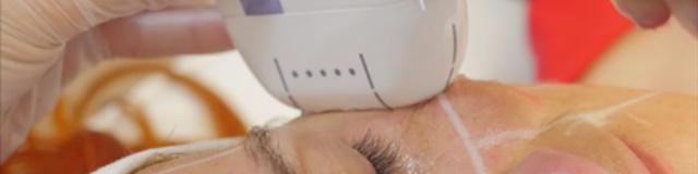 HIFU fókuszált ultrahang