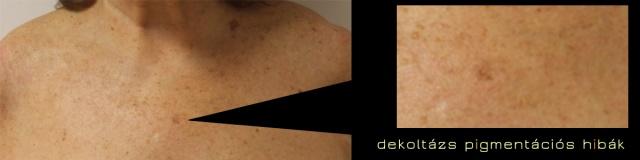 A bőr rugalmasságától függ
