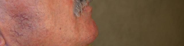 Érelváltozások az arcon