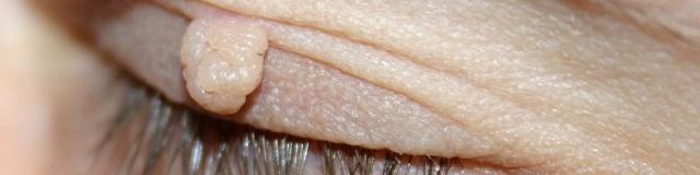 Bőrnövedékek, fibrómák lézeres eltávolítása