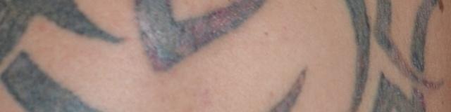 Tetoválások Eltávolítása