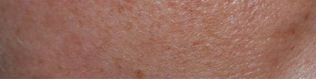 Bőrünk festékanyaga, a melanin titkai