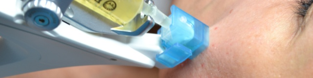 Mikro-tűs 3D mezoterápia