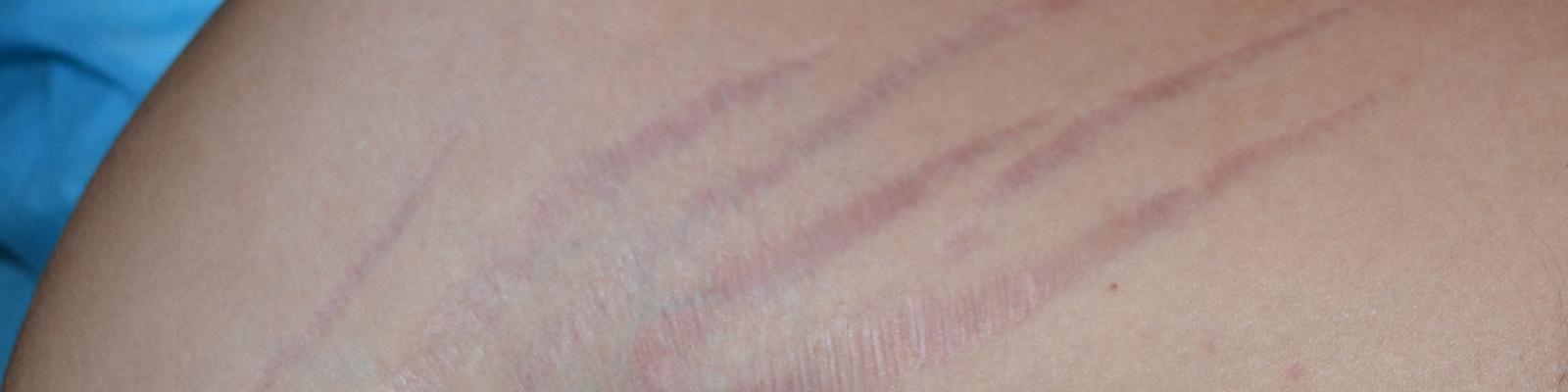 fogyás striák viszket makrók az endomorf férfi zsírvesztéshez